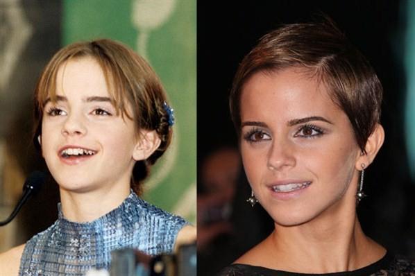 Эти знаменитости покажут вам, как кардинально брекеты меняют улыбку